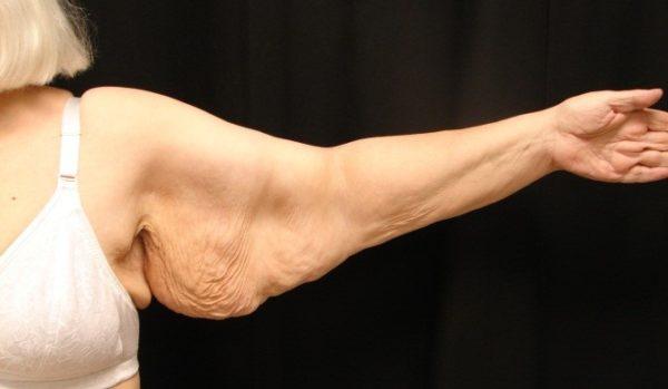 brachioplasty-pre-op-2-virginia-beach-plastic-surgeon-VA-101-jacobs