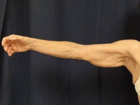 brachioplasty-pre-op-2-virginia-beach-plastic-surgeon-VA-102-jacobs