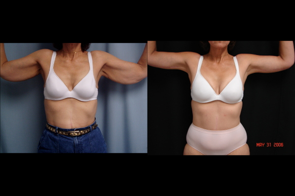 brachiplasty-before-and-after-virginia-beach-plastic-surgeon-VA-102-denk