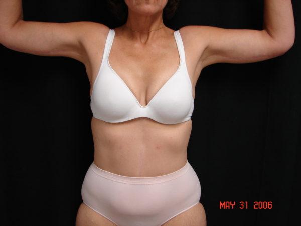 brachiplasty-post-op-1-virginia-beach-plastic-surgeon-VA-102-denk