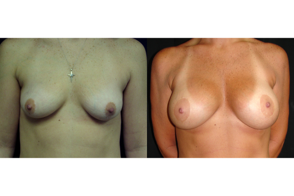 breast-augmentation-and lift-before-and-after-virginia-beach-plastic-surgeon-VA-106-MJD