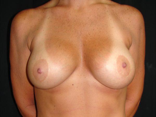 breast-augmentation-and lift-post-op-1-virginia-beach-plastic-surgeon-VA-106-MJD
