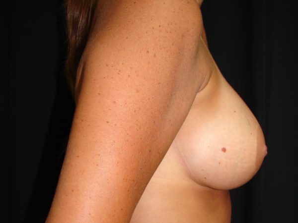 breast-augmentation-and lift-post-op-2-virginia-beach-plastic-surgeon-VA-106-MJD