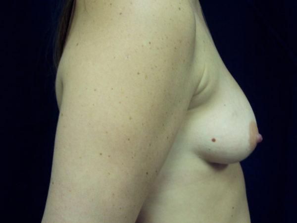 breast-augmentation-and-lift-pre-op-2-virginia-beach-plastic-surgeon-VA-106-MJD