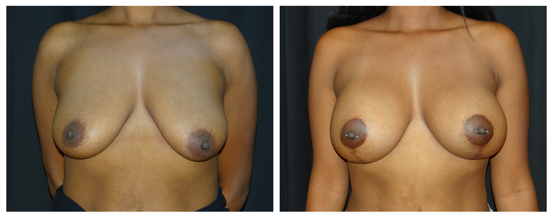 breast-augmentation-before-and-after-1-virginia-beach-plastic-surgeon-VA-0001-denk