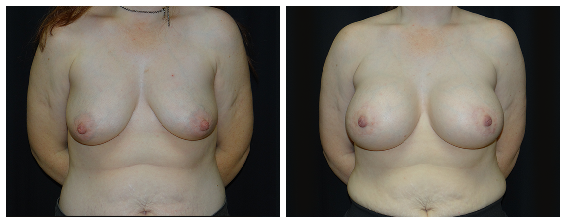 breast-augmentation-before-and-after-1-virginia-beach-plastic-surgeon-VA-0002-denk