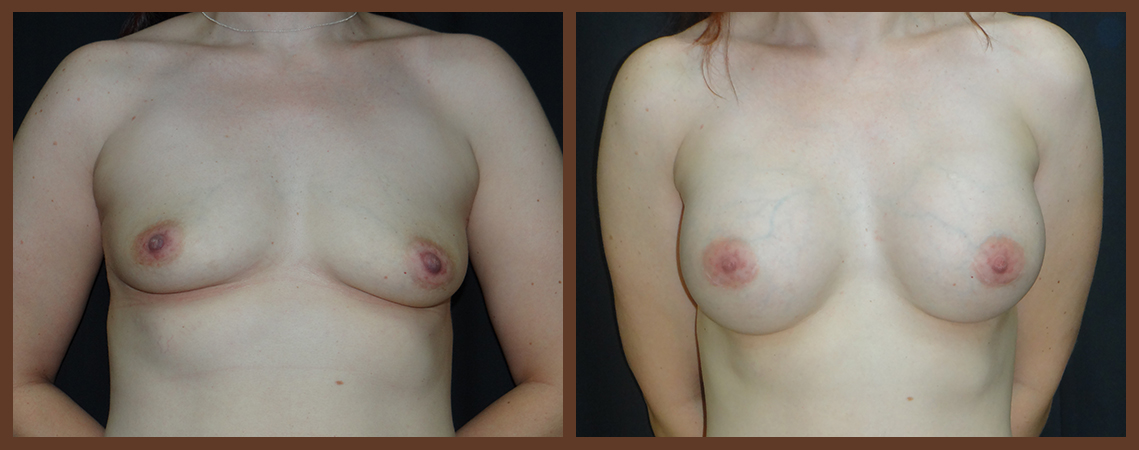 breast-augmentation-before-and-after-1-virginia-beach-plastic-surgeon-VA-0003-denk