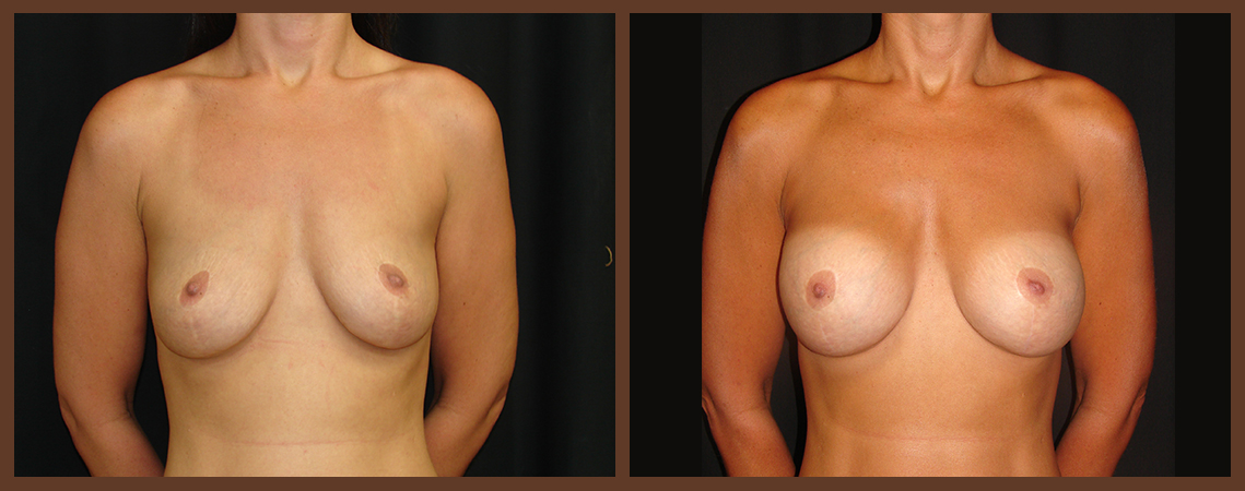 breast-augmentation-before-and-after-1-virginia-beach-plastic-surgeon-VA-0004-denk