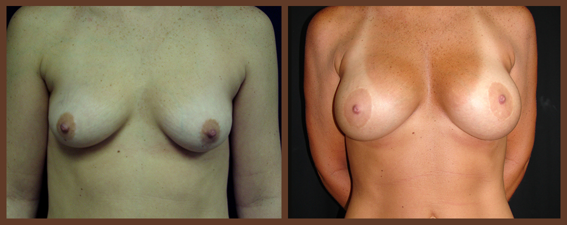breast-augmentation-before-and-after-1-virginia-beach-plastic-surgeon-VA-0005-denk
