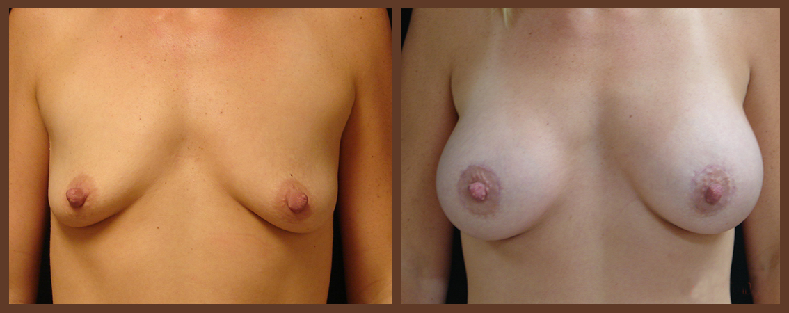 breast-augmentation-before-and-after-1-virginia-beach-plastic-surgeon-VA-0006-denk