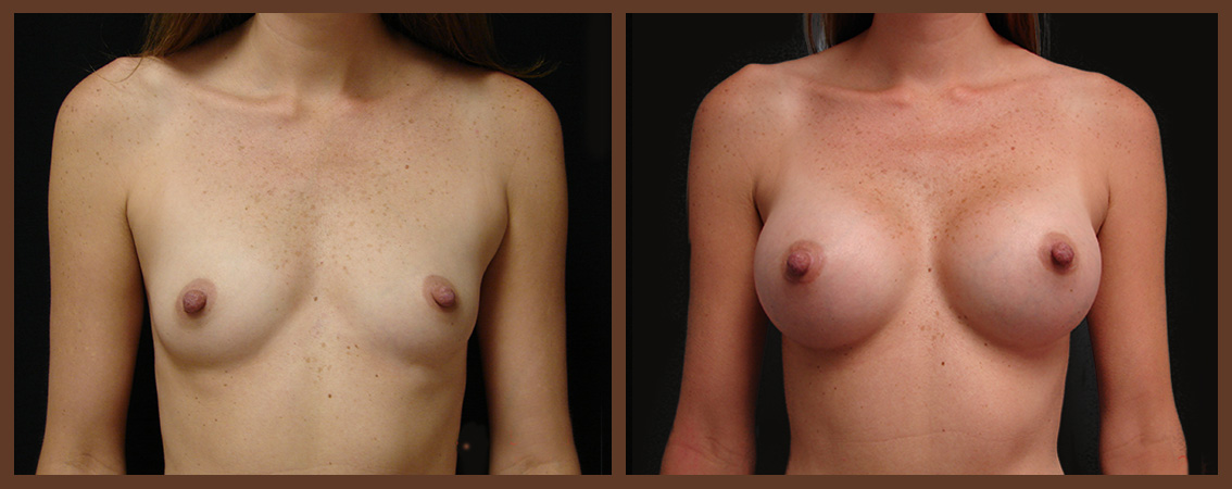 breast-augmentation-before-and-after-1-virginia-beach-plastic-surgeon-VA-0009-denk