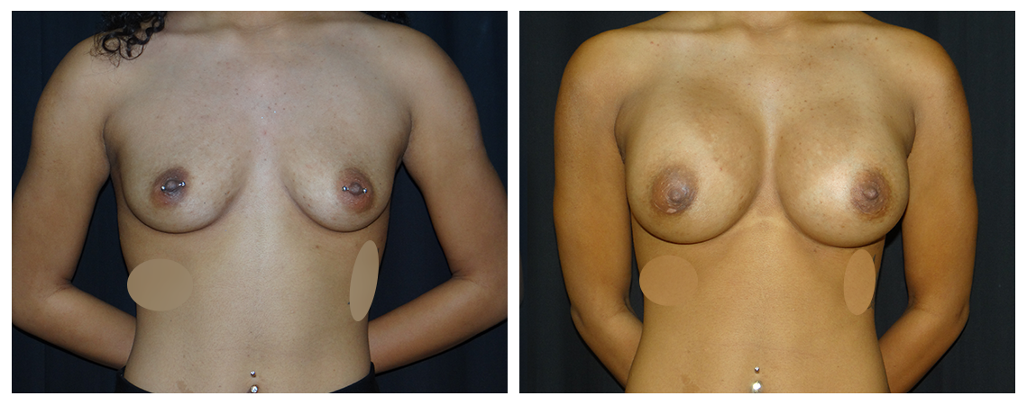 breast-augmentation-before-and-after-1-virginia-beach-plastic-surgeon-VA-0010-denk