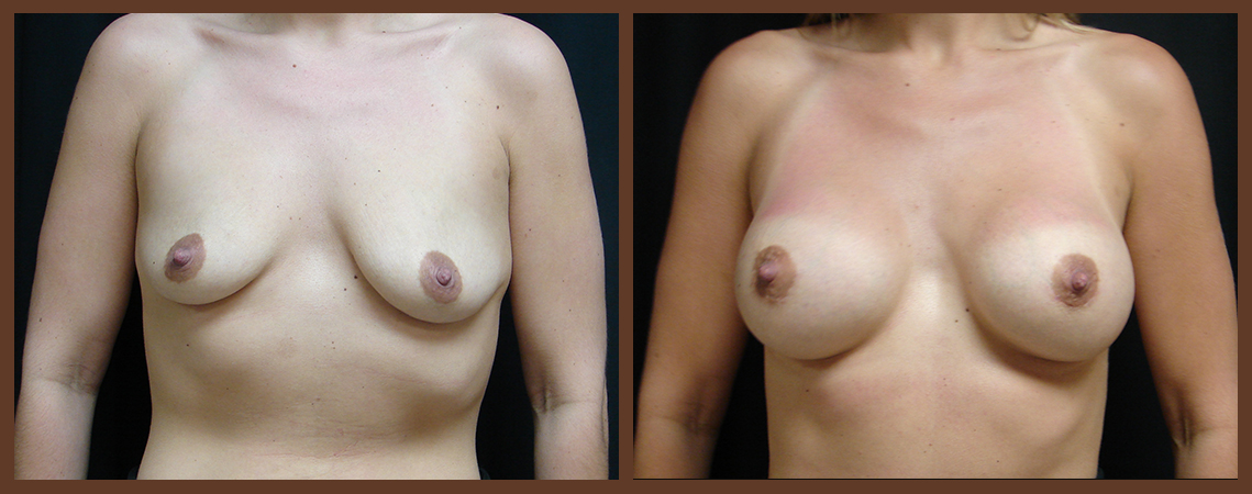 breast-augmentation-before-and-after-1-virginia-beach-plastic-surgeon-VA-0013-JSA