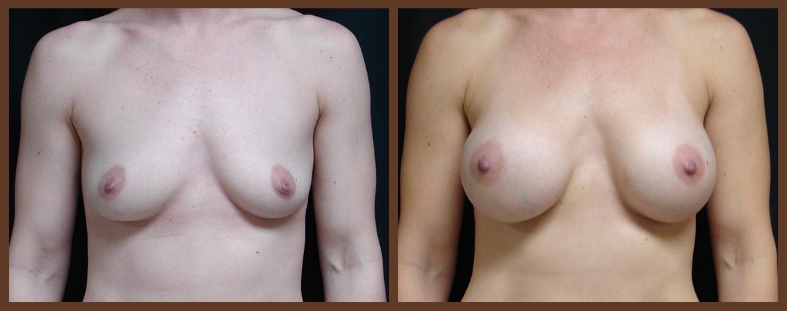 breast-augmentation-before-and-after-1-virginia-beach-plastic-surgeon-VA-0014-JSA