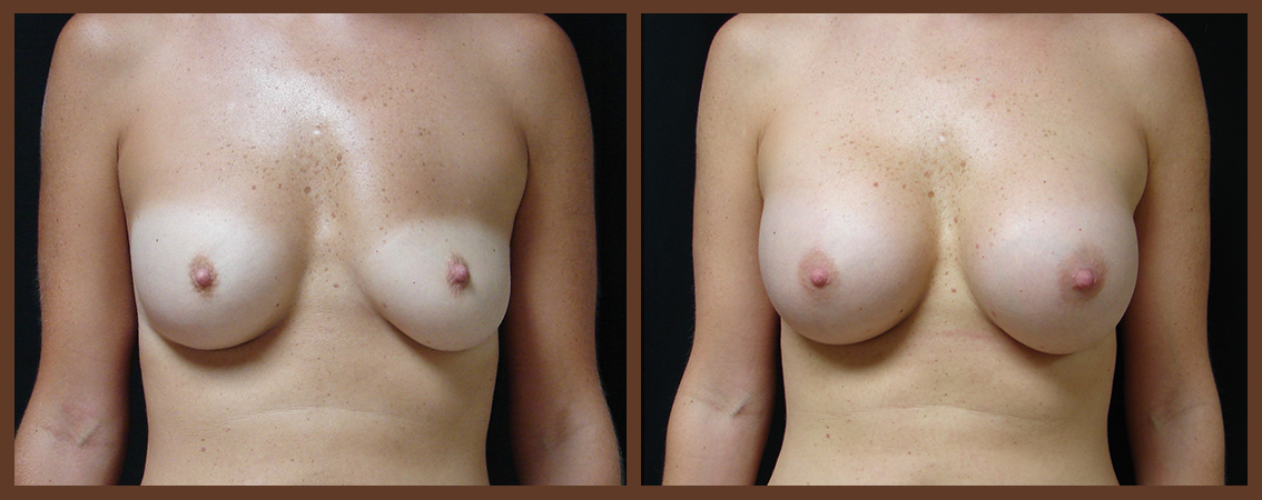 breast-augmentation-before-and-after-1-virginia-beach-plastic-surgeon-VA-0017-JSA