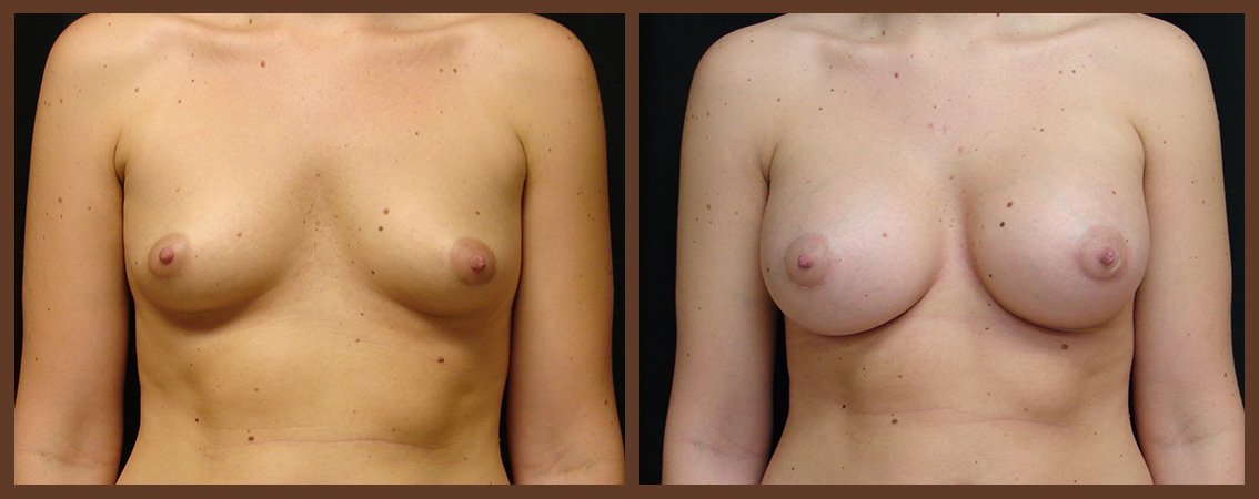 breast-augmentation-before-and-after-1-virginia-beach-plastic-surgeon-VA-0018-JSA