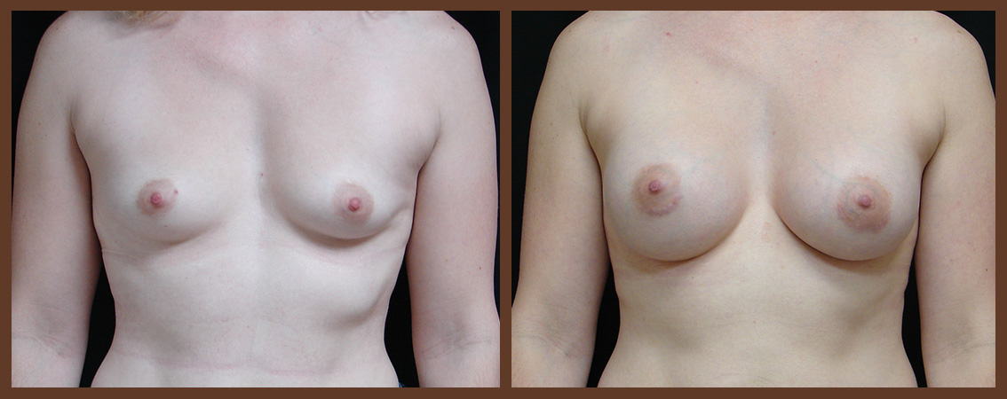 breast-augmentation-before-and-after-1-virginia-beach-plastic-surgeon-VA-0019-JSA