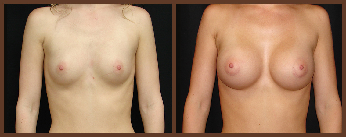 breast-augmentation-before-and-after-1-virginia-beach-plastic-surgeon-VA-0020-JSA
