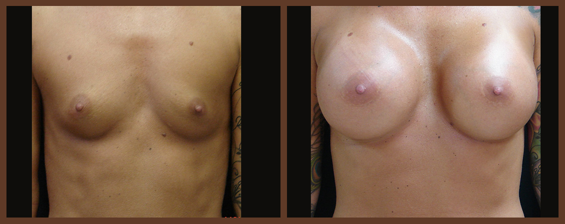 breast-augmentation-before-and-after-1-virginia-beach-plastic-surgeon-VA-0021-JSA