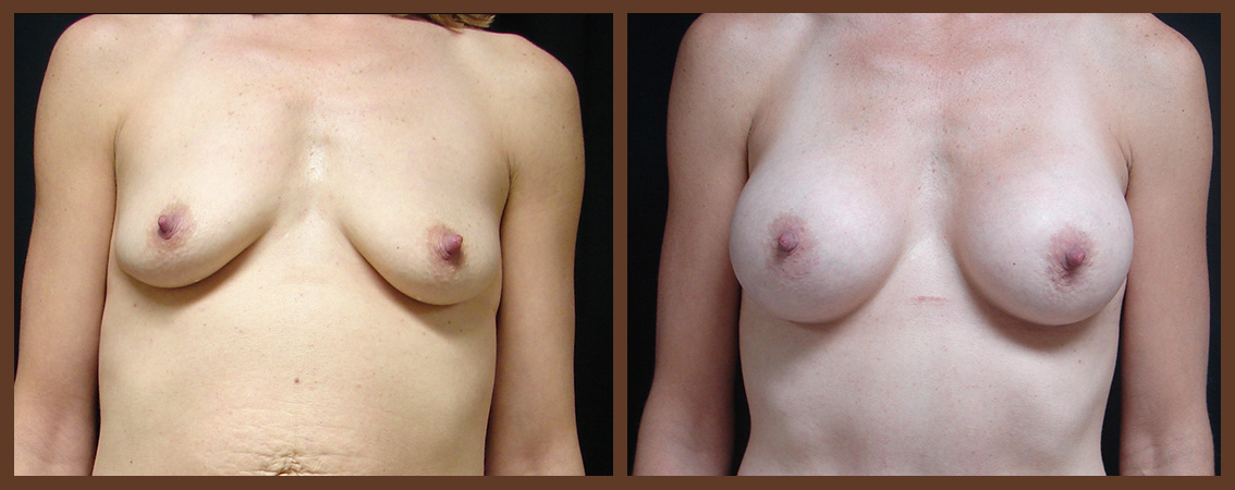 breast-augmentation-before-and-after-1-virginia-beach-plastic-surgeon-VA-0022-JSA