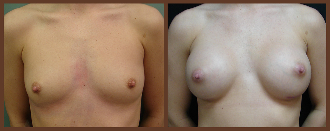 breast-augmentation-before-and-after-1-virginia-beach-plastic-surgeon-VA-0023-JSA