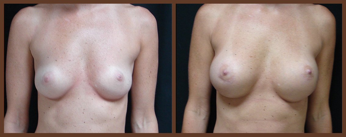 breast-augmentation-before-and-after-1-virginia-beach-plastic-surgeon-VA-0024-JSA