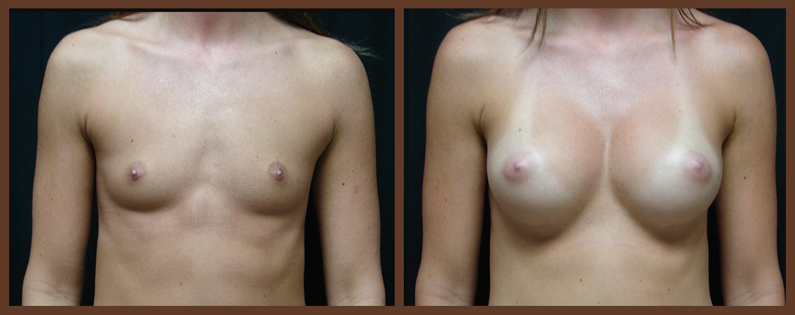 breast-augmentation-before-and-after-1-virginia-beach-plastic-surgeon-VA-0025-JSA