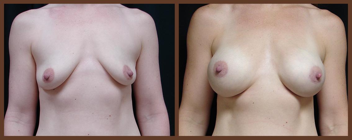 breast-augmentation-before-and-after-1-virginia-beach-plastic-surgeon-VA-0026-JSA