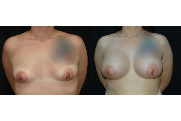 breast-augmentation-before-and-after-1-virginia-beach-plastic-surgeon-VA-102-denk