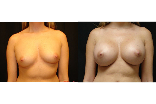 breast-augmentation-before-and-after-1-virginia-beach-plastic-surgeon-VA-103-JSJ