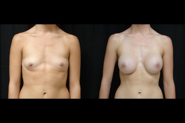 breast-augmentation-before-and-after-1-virginia-beach-plastic-surgeon-VA-110-JSA