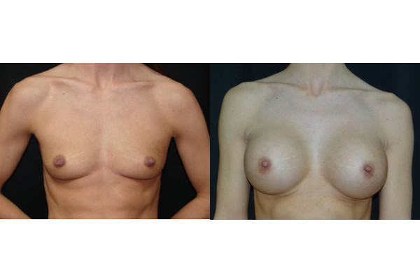 breast-augmentation-before-and-after-1-virginia-beach-plastic-surgeon-VA-denk