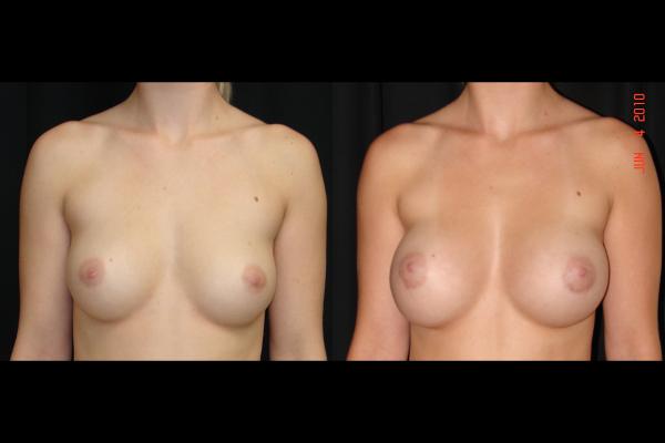 breast-augmentation-before-and-after-1-virginia-beach-plastic-surgeons-VA-107-JSA