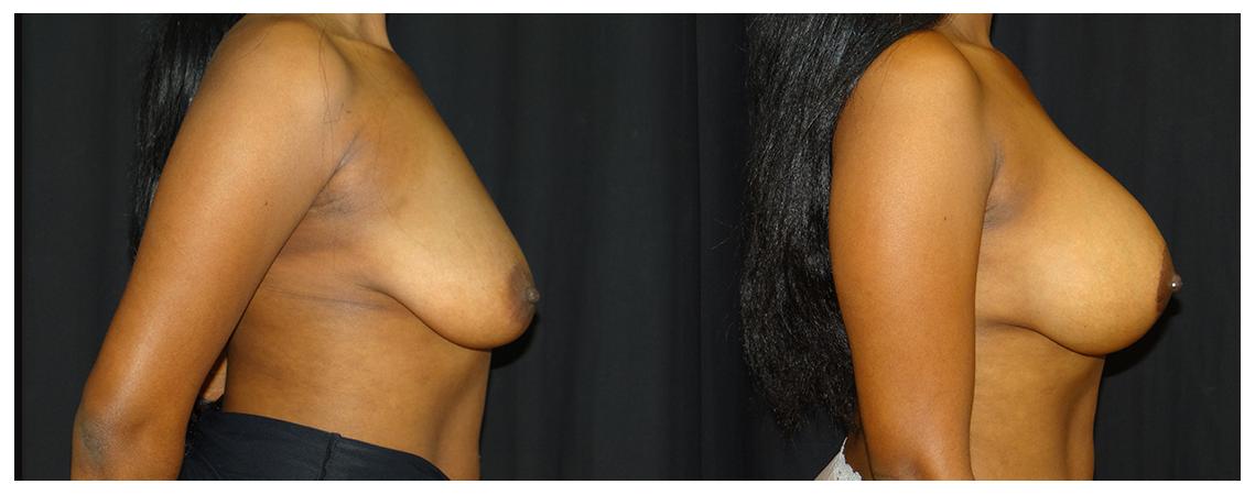breast-augmentation-before-and-after-2-virginia-beach-plastic-surgeon-VA-0001-denk