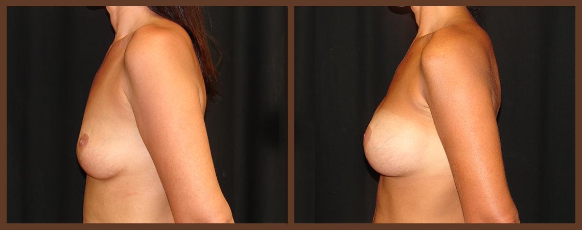 breast-augmentation-before-and-after-2-virginia-beach-plastic-surgeon-VA-0004-denk