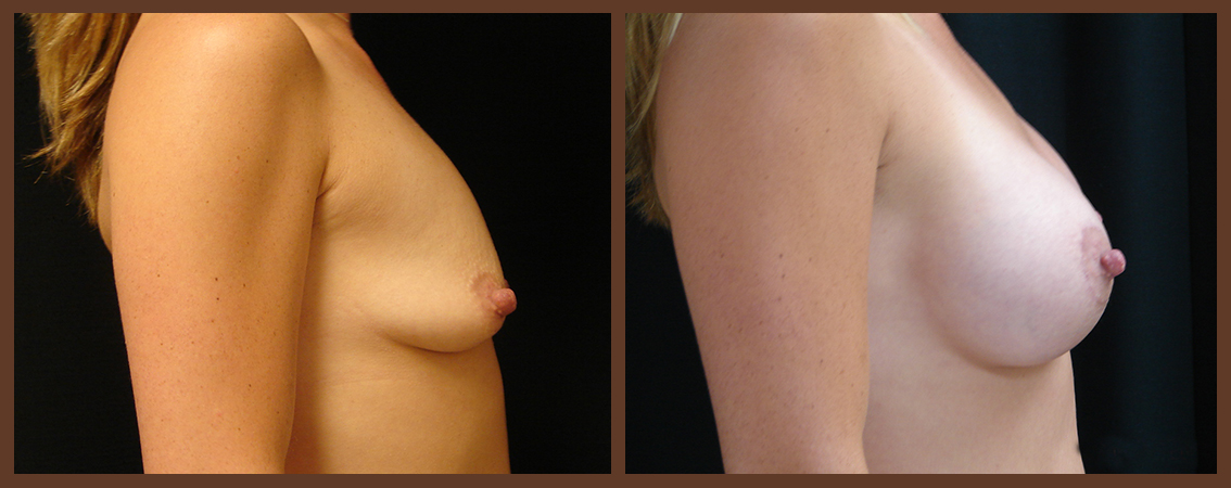breast-augmentation-before-and-after-2-virginia-beach-plastic-surgeon-VA-0006-denk