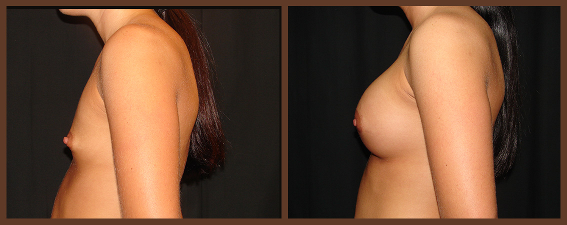 breast-augmentation-before-and-after-2-virginia-beach-plastic-surgeon-VA-0007