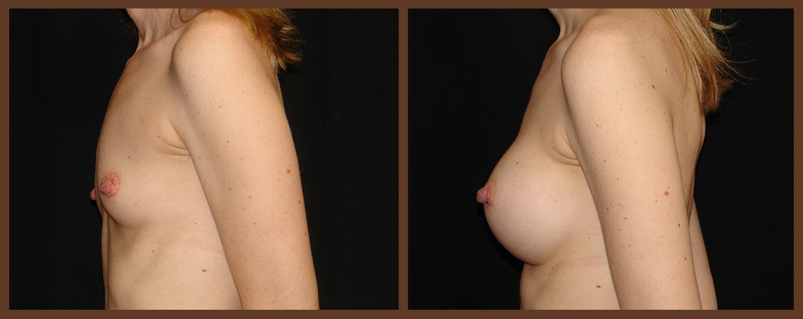 breast-augmentation-before-and-after-2-virginia-beach-plastic-surgeon-VA-0008-denk