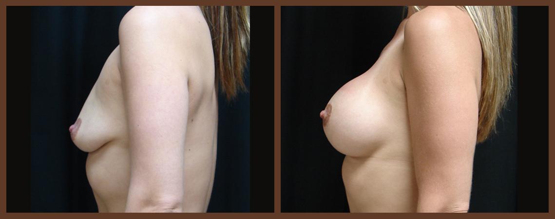 breast-augmentation-before-and-after-2-virginia-beach-plastic-surgeon-VA-0013-JSA