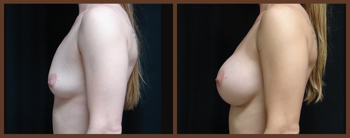 breast-augmentation-before-and-after-2-virginia-beach-plastic-surgeon-VA-0014-JSA