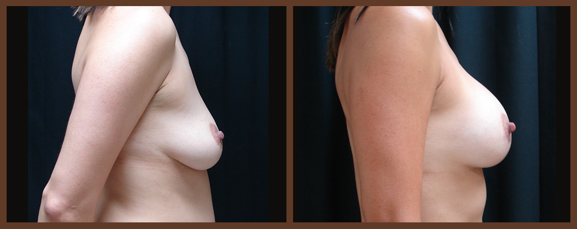breast-augmentation-before-and-after-2-virginia-beach-plastic-surgeon-VA-0016-JSA