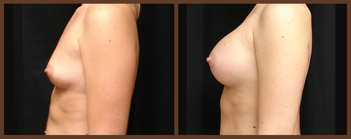 breast-augmentation-before-and-after-2-virginia-beach-plastic-surgeon-VA-0018-JSA
