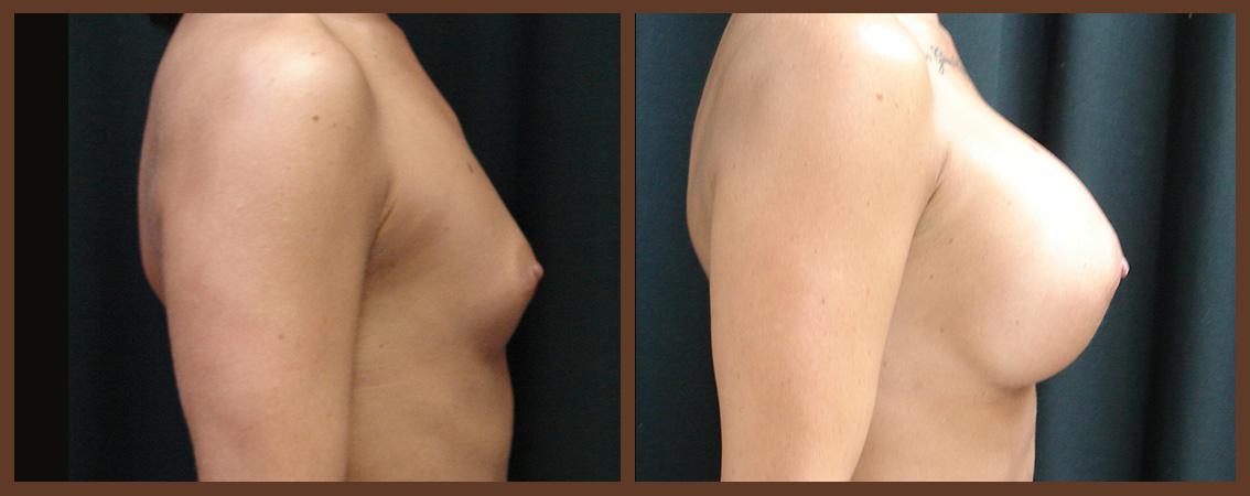 breast-augmentation-before-and-after-2-virginia-beach-plastic-surgeon-VA-0021-JSA