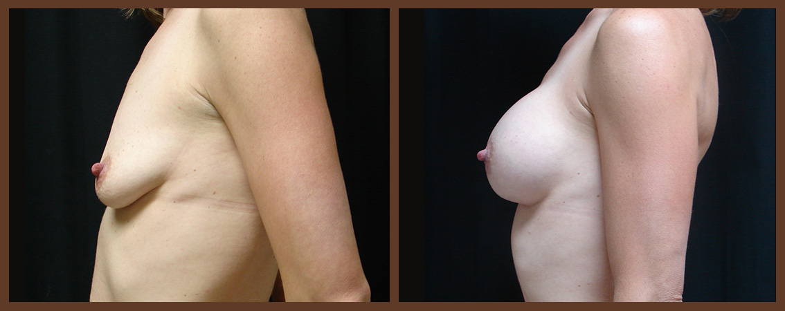 breast-augmentation-before-and-after-2-virginia-beach-plastic-surgeon-VA-0022-JSA