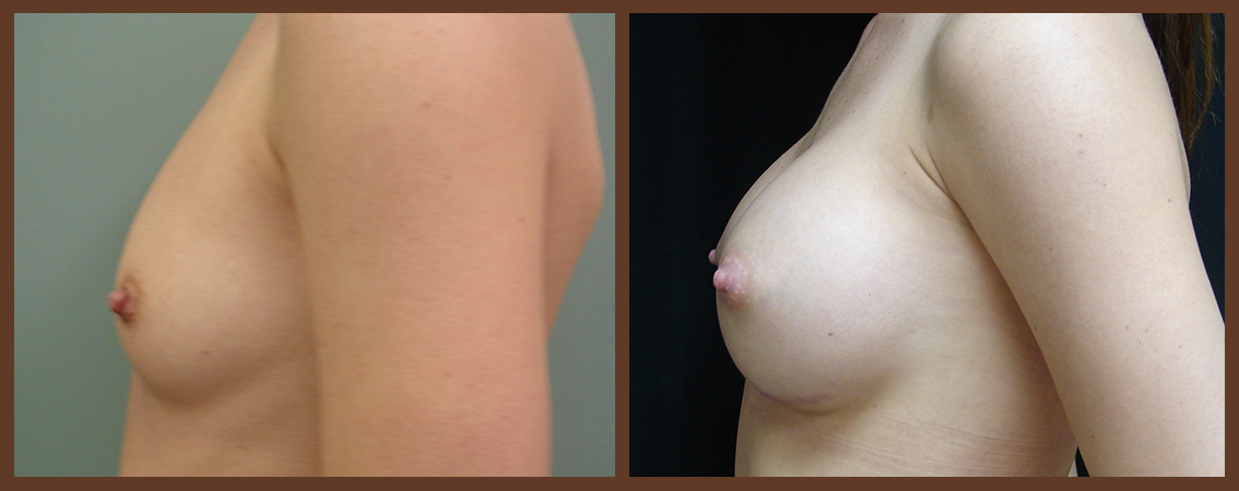 breast-augmentation-before-and-after-2-virginia-beach-plastic-surgeon-VA-0023-JSA