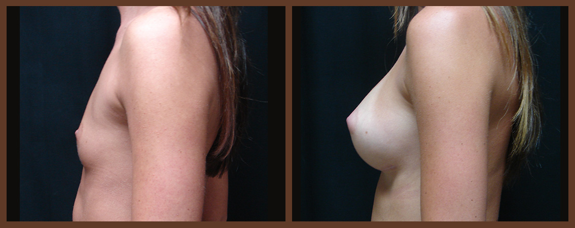 breast-augmentation-before-and-after-2-virginia-beach-plastic-surgeon-VA-0025-JSA