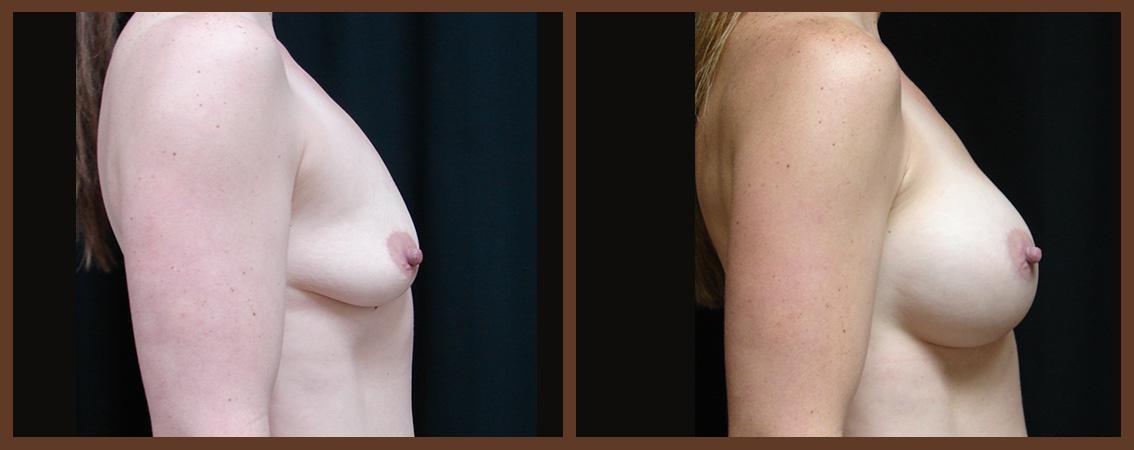 breast-augmentation-before-and-after-2-virginia-beach-plastic-surgeon-VA-0026-JSA