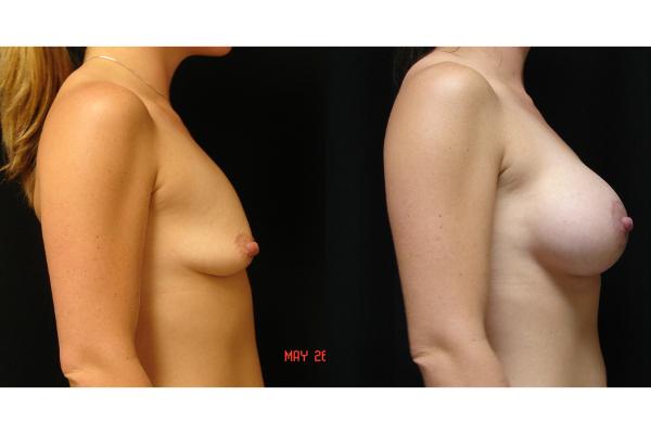 breast-augmentation-before-and-after-2-virginia-beach-plastic-surgeon-VA-102-MJD