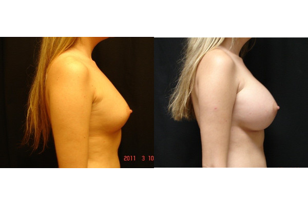breast-augmentation-before-and-after-2-virginia-beach-plastic-surgeon-VA-103-JSJ