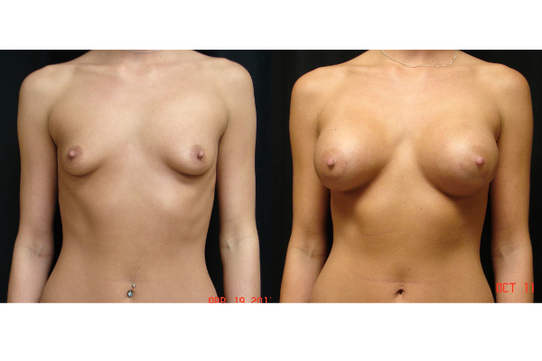 breast-augmentation-before-and-after-virginia-beach-plastic-surgeon-105-JSA